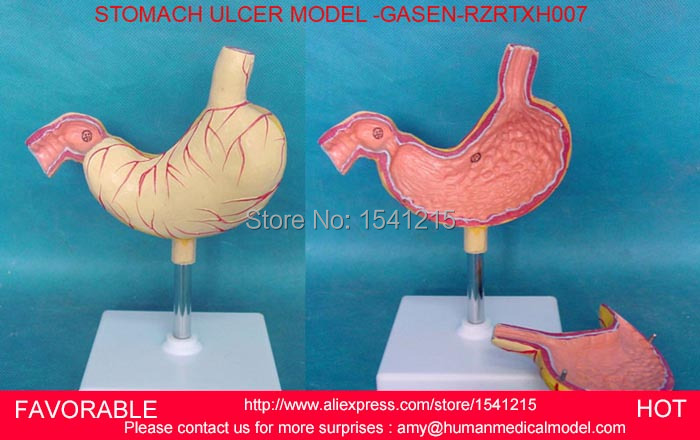 STOMACH MODEL, STOMACH ANATOMY, HUMAN ANATOMY MODEL, ANATOMICAL MODEL, GASTROINTESTINAL  TRAINING MODEL -GASEN-RZRTXH007 cmam viscera01 human anatomy stomach associated of the upper abdomen model in 6 parts
