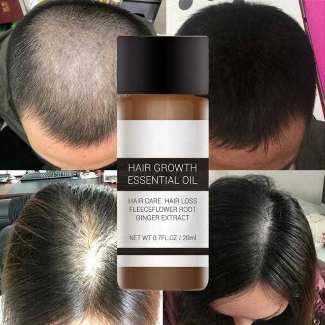 LANBENA Saç Büyüme Özü Hızlı Güçlü Ürünler uçucu yağ Sıvı Arıtma Önlemek Saç Dökülmesi Saç Bakım Andrea 20 ml Yeni