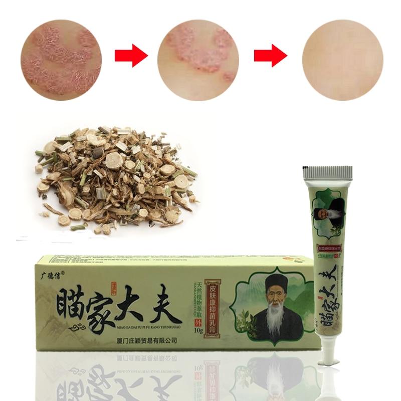 100%  Natural Herbal Creams Body Psoriasis Cream Perfect For Dermatitis And Eczema Pruritus Psoriasis Skin Problem Plaster