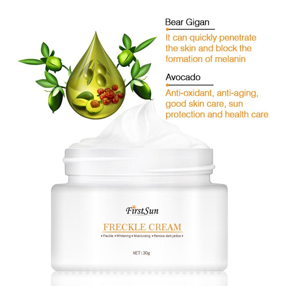 30g Freckle Cream Strong Effect Blemish Inhibits Melanin Acne Dark Spots Fades Pigment Melanin Sunburn Radiation Skin Care TSLM2