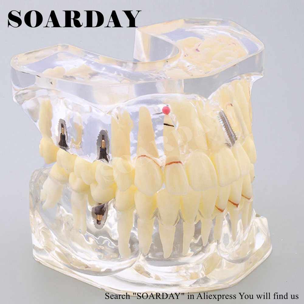 SOARDAY 1 piece 2 times Dental Pathological Model Implant Bridge Crown Treatment Oral Teaching Model soarday 1 piece 2 times dental pathological model display deep caries shallow caries teaching model