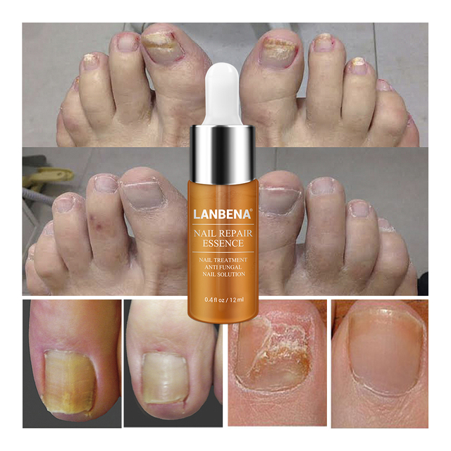 LANBENA Nail Repair Essence Serum Fungal Nail Treatment Remove Onychomycosis Toe Nourishing Brighten Hand Foot Skin Care 12ml
