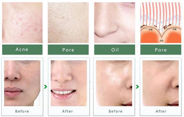 Personal Microderm System V Line Face remove Scars Acne Marks Skin Beauty Machine Dermabrasion Microdermabrasion