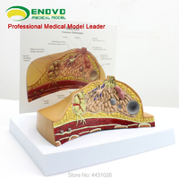 ENOVO Breast model gynecology and obstetrics teaching nursing breast model