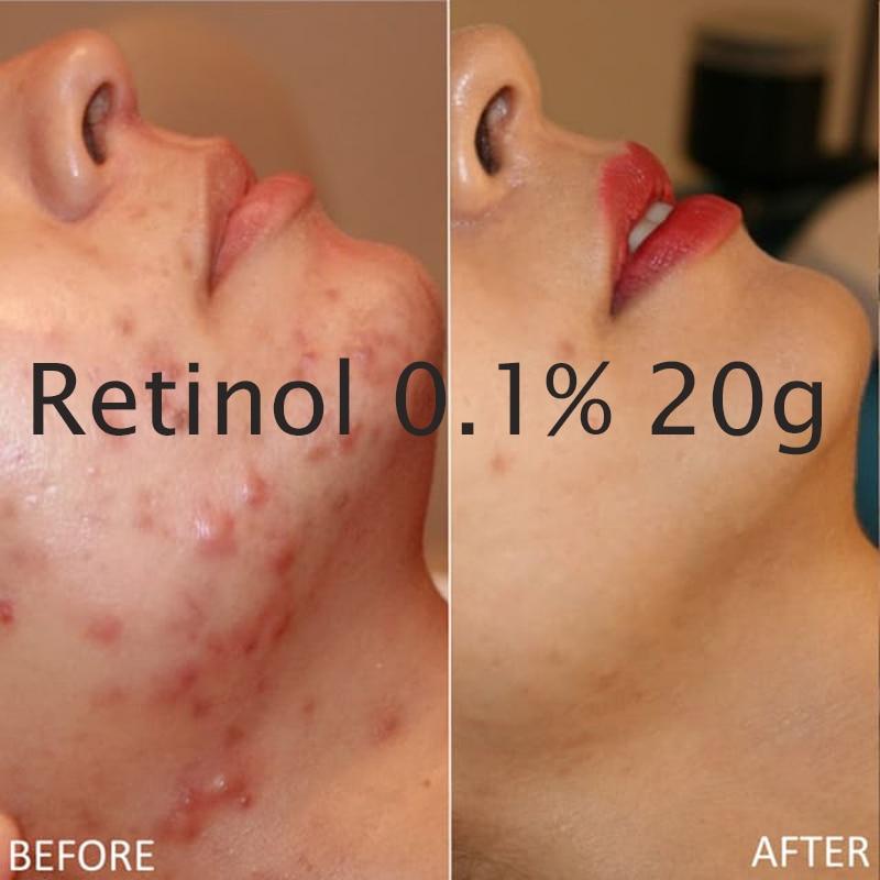 FREE SHIPPING NEW RETINOL VITAMIN A 0.1% CREAM GEL Retin Acne Anti Wrinkles Blemish Treatmen 20g