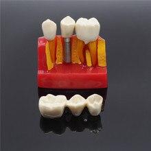 Стоматология клиника имплантат анализ Корона мост демонстрационная модель зубов