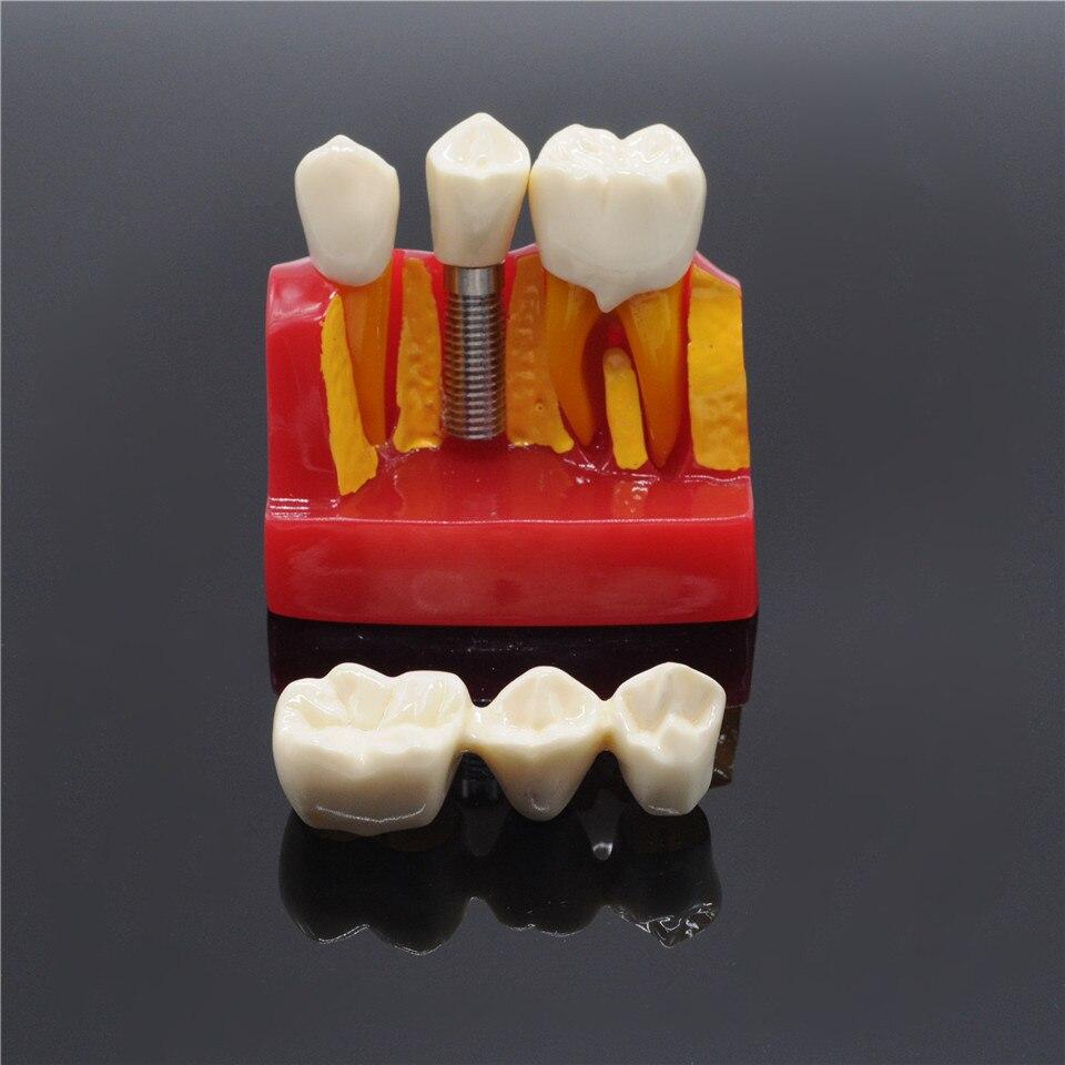 Modèle de dents de démonstration de pont de couronne d'analyse d'implant de clinique de dentisterie