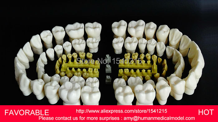 ORAL MODEL,TEETH,MANDIBULAR IMPLANT DENTAL MODEL,NATOMIACL TOOTH ,ORAL CARE MODEL,4 TIMES CROWN DENTAL MODEL-GASEN-DEN032 soarday 1 piece 2 times dental pathological model implant bridge crown treatment oral teaching model