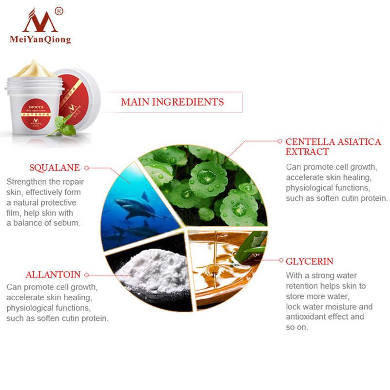 عالية الجودة السلس الجلد كريم ل تمتد علامات إزالة الندوب إلى الأمومة إصلاح الجلد كريم للجسم إزالة ندبة الرعاية بعد الولادة