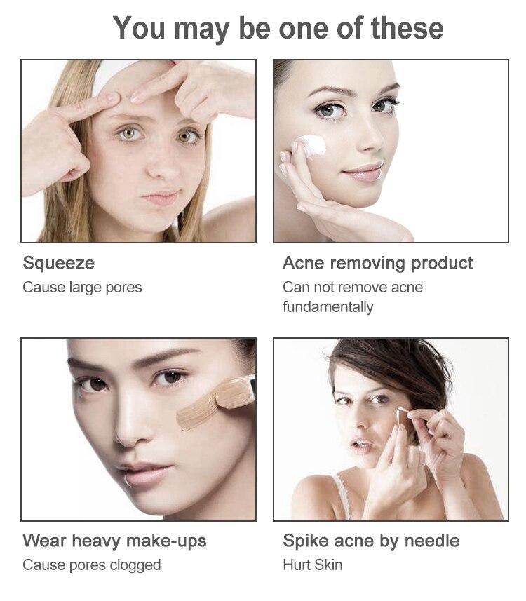 Powered Dispositivos De Limpeza Facial