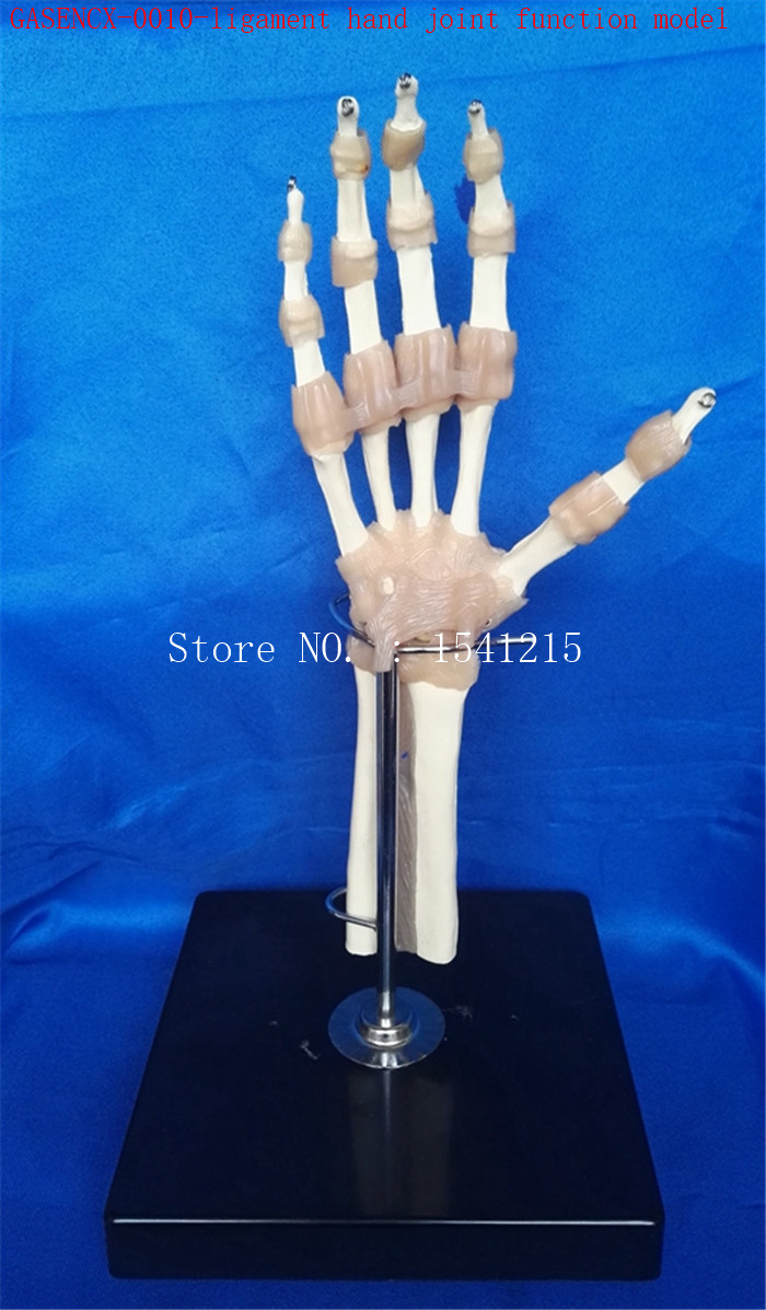 Advanced ligament hand joint function model Hand joints Radius Ulnar model Medical teaching model-GASENCX-0010 reproductive system family planning model teaching medical model hanging healthy male abdominal cavity gasencx 0028