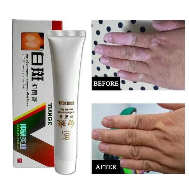 Crema médica china de 30g para la enfermedad del punto blanco, pigmento Vitiligo, tratamiento de la enfermedad de Leukoplakia, melanina que promueve la piel linimenta