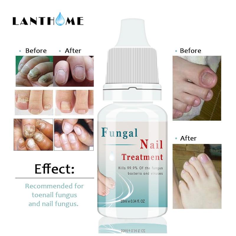Kills 99.9% Bacteria Nail Fungus Treatment Nail Care Oil Onychomycosis Paronychia Anti Fungal Nail Infection 10ml Repair Nails