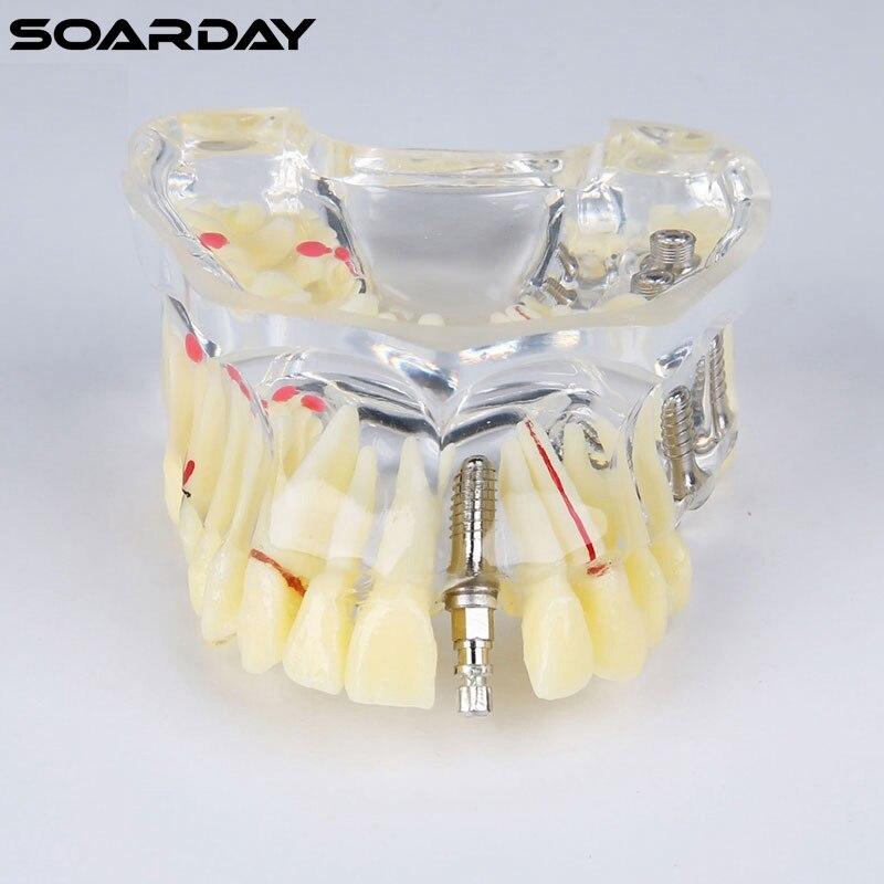 ᗕModelo de implante con el puente y la caries para dentista ...