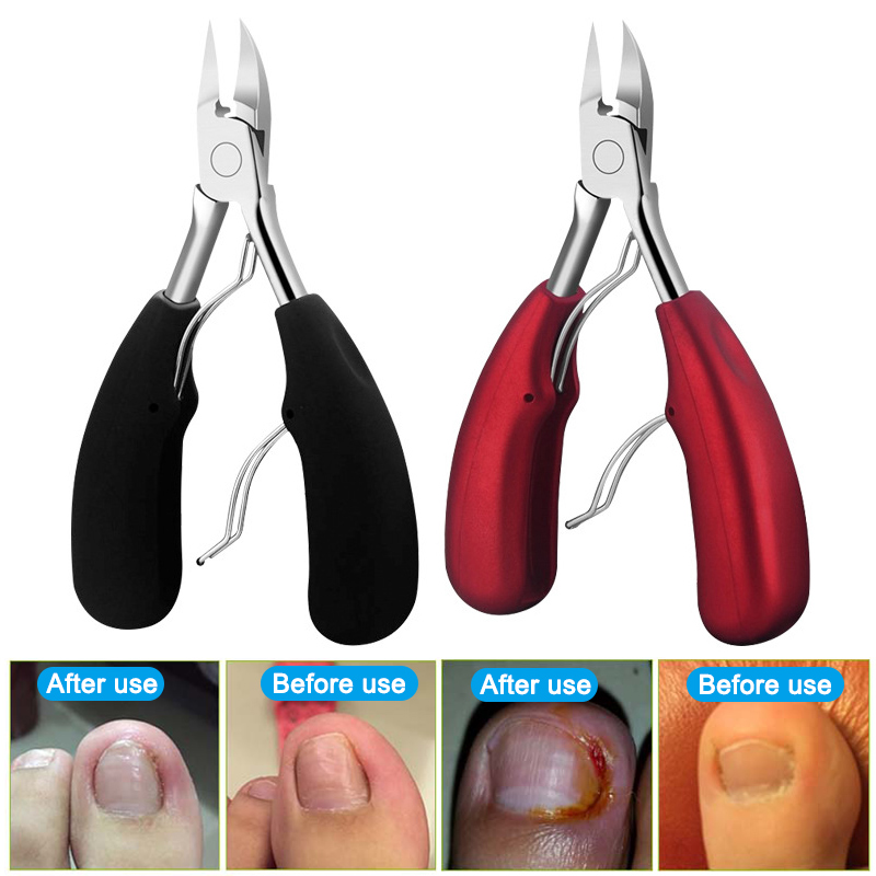 1pcs Stainless Steel Toenail Clippers Ingrown Toe Nails Clipper Scissors Cutter Pedicure  Dead Skin Remover Pliers