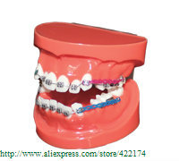 Free Shipping Orthodontics treatment model study model dental tooth teeth dentist dentistry  odontologia Tyodont Model 2016 dental orthodontics typodont teeth model half metal half ceramic brace typodont with arch wire