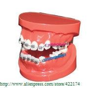 Free Shipping Orthodontics treatment model study model dental tooth teeth dentist dentistry  odontologia Tyodont Model