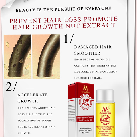 MeiYanQiong Fast Powerful Hair Growth Essence Hair Loss Products Essential Oil Liquid Treatment Hair Loss Care Products TSLM2 Multan