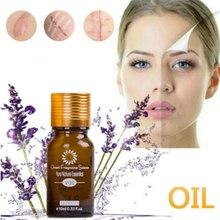 10ml Face Care Whitening cream Remove Freckle melasma pigment Melanin spots acne