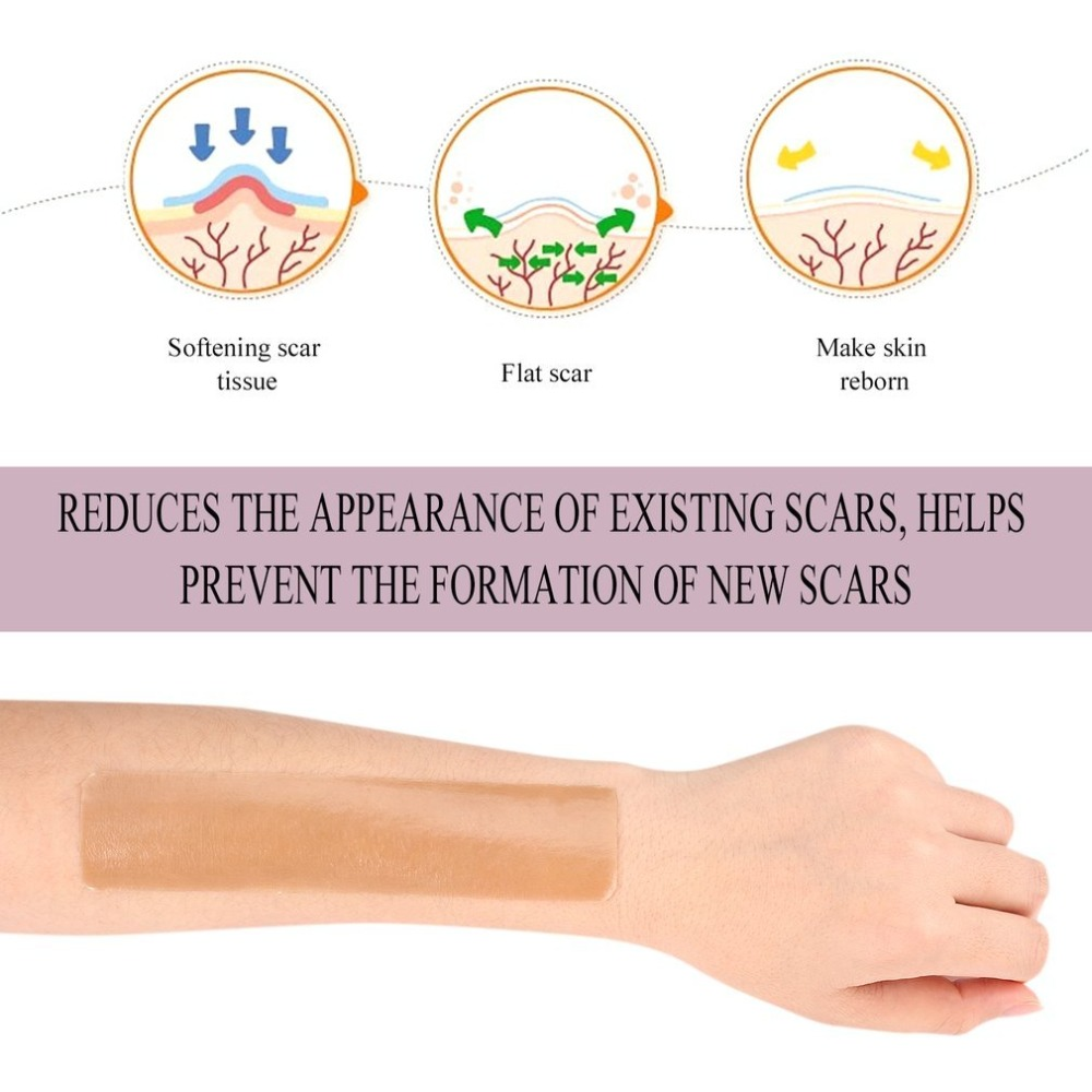 купить Efficient Surgery Silicone Gel Removal Scar Sheet Therapy Patch 3.5x15cm for Acne Trauma Burn Scar Skin Repair Removel Scar