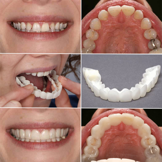 Snap On Smile Veneer Teeth On Aliexpress Com Alibaba Group