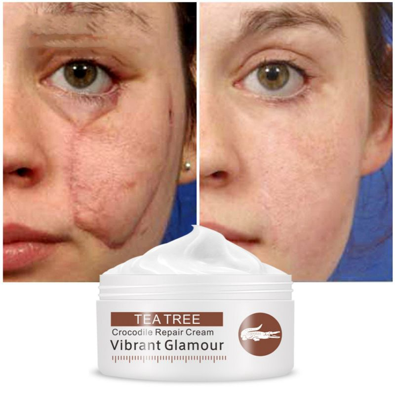 Skin Care Treatment: Scar Repair Face Cream Acne Removal Whitening Acne
