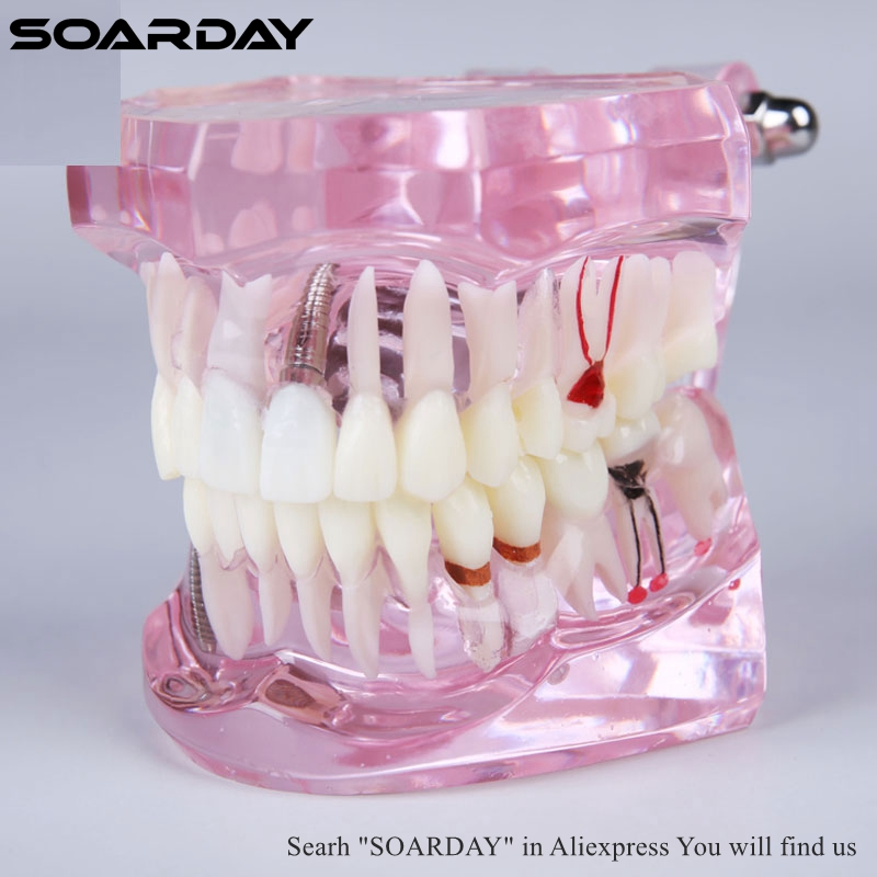 SOARDAY 1pc Dental Comprehensive Teaching Model Tooth Disease and Prosthodontics soarday dental endodontic restoration model teaching communication model pathological display dental caries