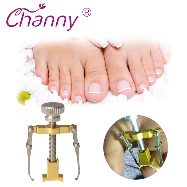 Channy Ingrown Toenails Pedicure Foot Nail Care Tools Ingrown ...