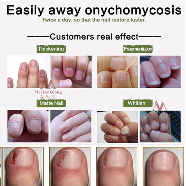 High Quality Nail Protector Skin Care Cream Nail Fungus Treatment Herb Nails Repair Cream Nail Care Tools