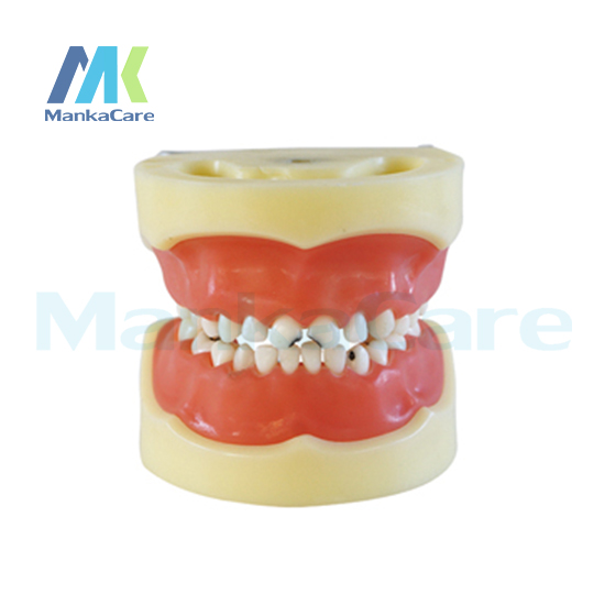 Manka Care - Caries model of child/Gum can be removed Oral Model Teeth Tooth Model цена
