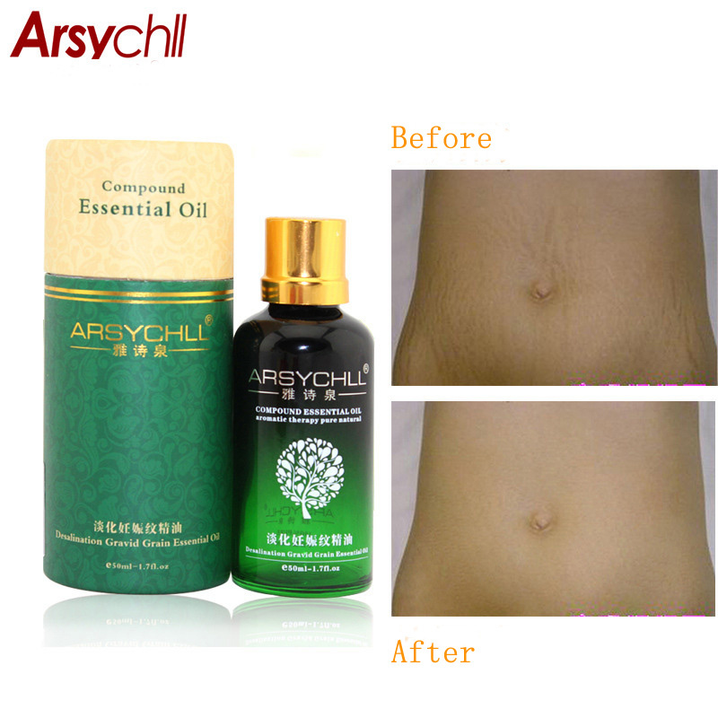 2pcs Natural Potent To Stretch Marks Essential Oils Treatment Maternity Obesity Postpartum Repair Stretch Marks Remover Cream