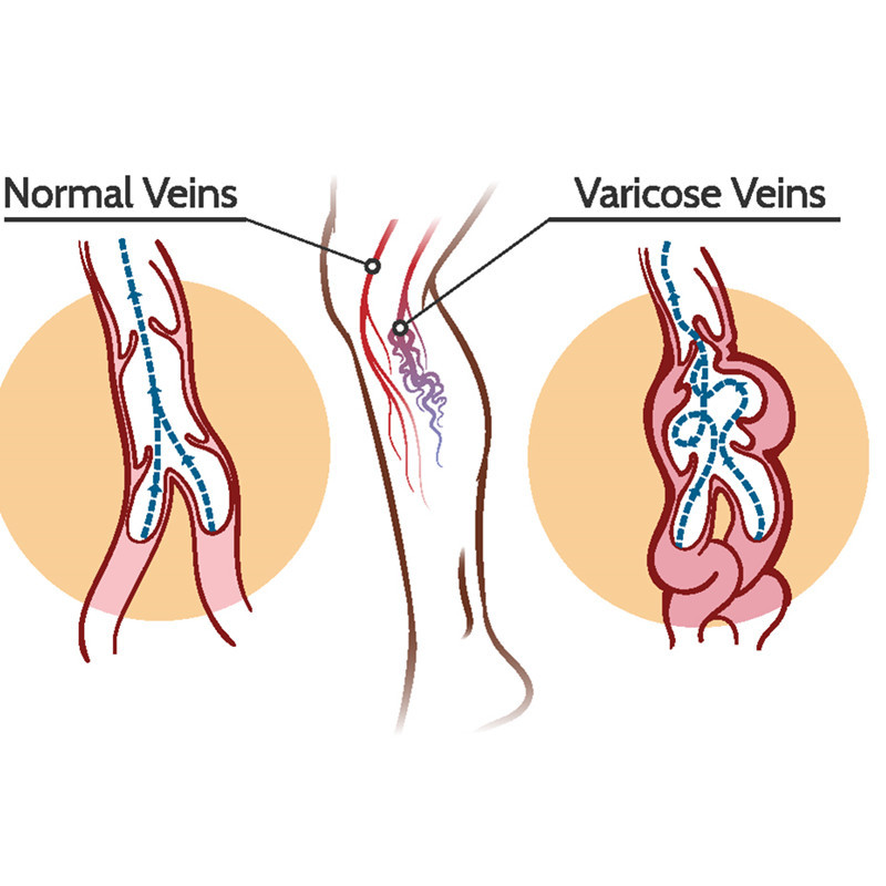 varicose-vein-diagram_