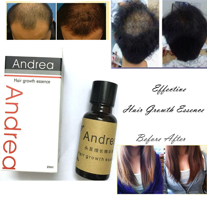 Andrea Hot Fast Hair Growth Pilatory Essence Human Hair Oil