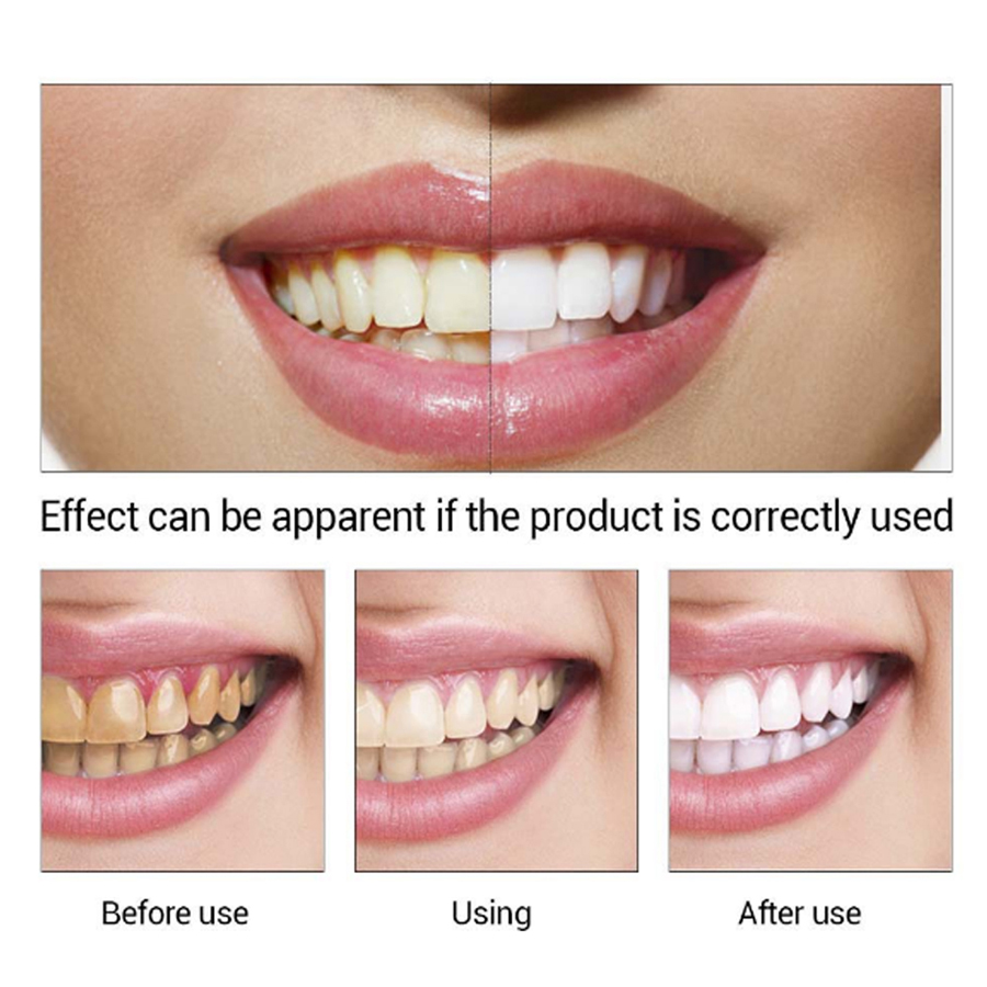 1Pcs Dental Teeth Whitening Essence Water Tooth Bleaching Removes Dental Stains Plaque Remover Toothpaste Oral Hygiene Care