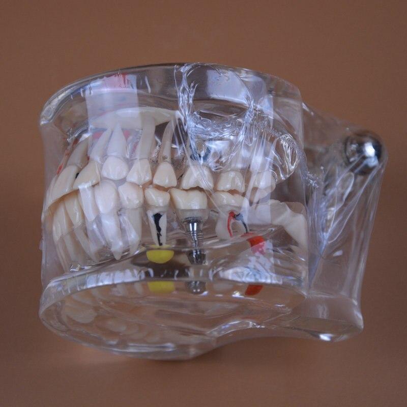 odontologia modelo patologia dental com implante 05
