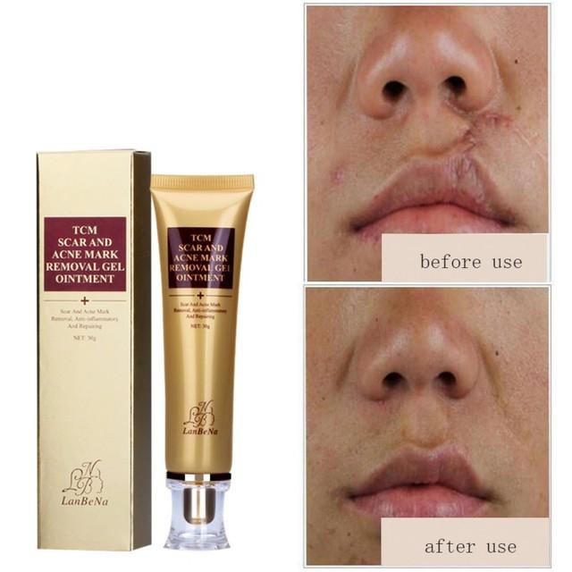 30 ml eliminación de cicatrices reparación de la piel crema manchas tratamiento Blackhead blanqueamiento crema US envío gratis