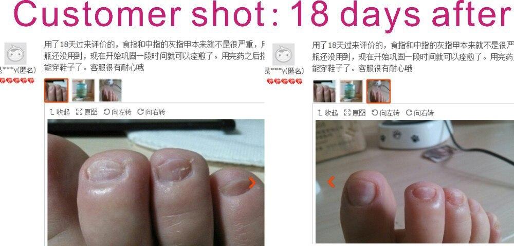 Самые эффективные средства от грибка ногтя отзывы
