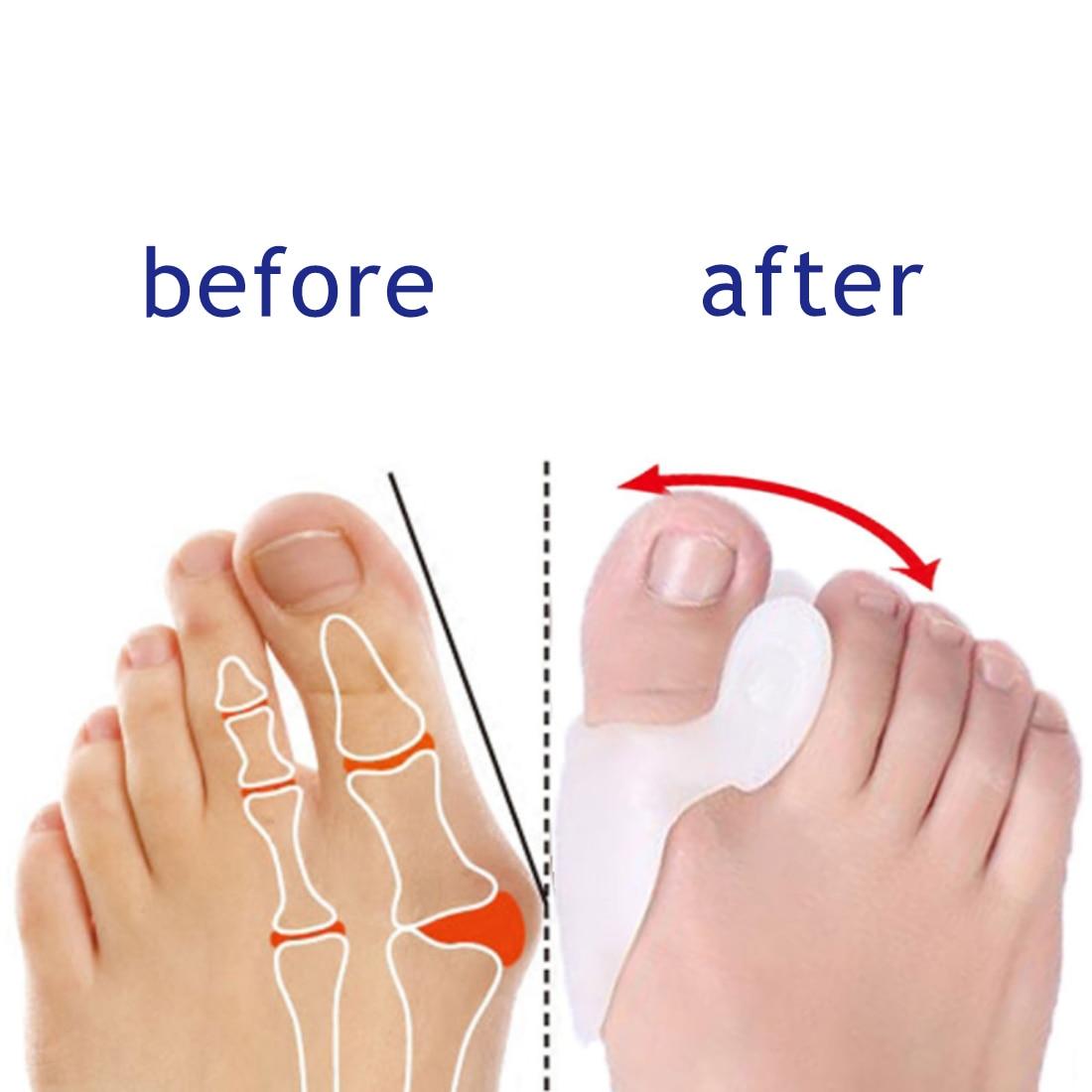 1Pair Silicone Gel Thumb Set Big Toe Separator Protector Relieve Foot Pain Foot Hallux Valgus Correction Pad Toe Braces
