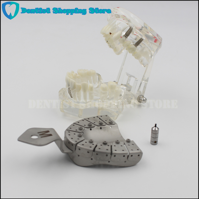 Dental Implant Impression Tray Removing Segments Position of the Abutments-in Teeth Whitening from Beauty & Health    1