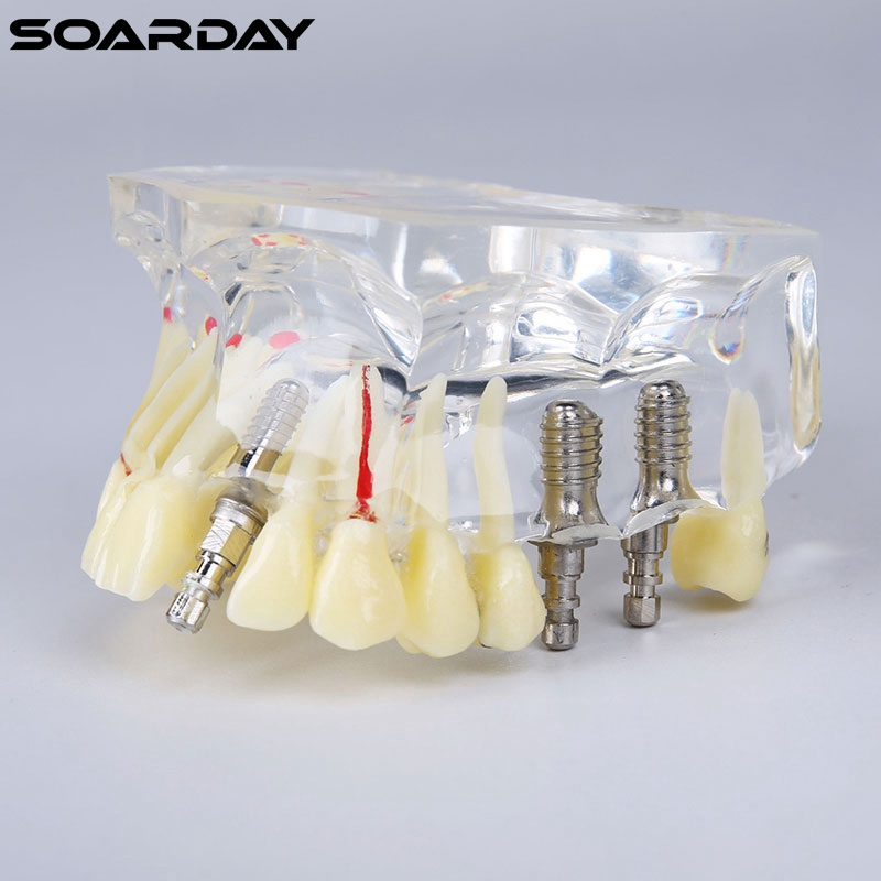 Implant model with bridge and caries for dentist communication dental tooth teeth anatomical anatomy model transparent dental orthodontic mallocclusion model with brackets archwire buccal tube tooth extraction for patient communication