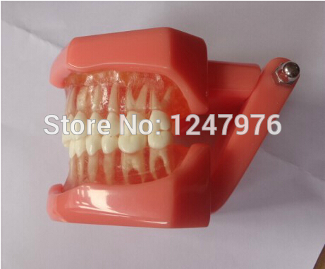 Tooth extraction model dental teaching model product dental product dental root canal filling practice model dental pulp model teaching model