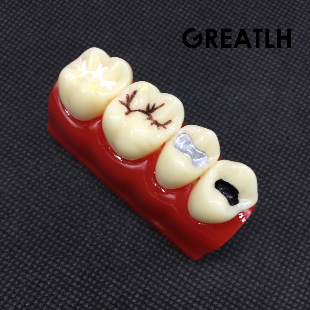 Dental Study Learn Model for Pit and Fissure Sealing Treatment Teeth Model