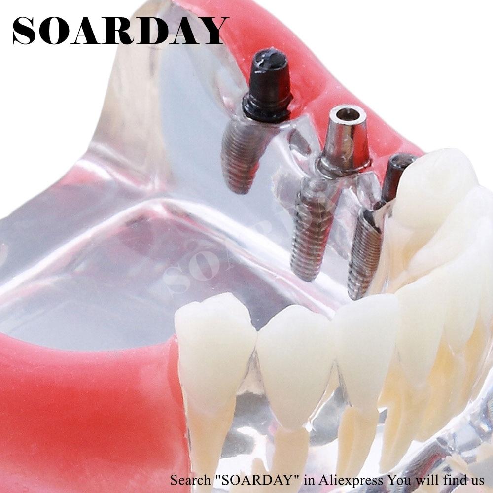 teeth dentistry Natural dental