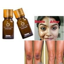 2018 Hot Face Care Whitening cream Remove Freckle melasma pigment Melanin spots