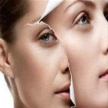 1PCS Whitening Snail Cream Face Care Skin Treatment Acne Pimples Reduce Scars Moisturizing Anti Wrinkle Face Lift Firming Cream