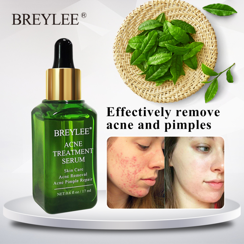 BREYLEE Acne Treatment Serum Face Facial Essence Anti Acne Scar Removal Cream Skin Care Whitening Repair Pimple Remover