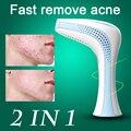 2 EN 1 Láser Acné Reparación Acné Remove Facial tratamiento Rápido las cicatrices de La Piel Facial herramienta de la Belleza Cuidado de La Salud 110-240 V de LA UE EE.UU. REINO UNIDO enchufe