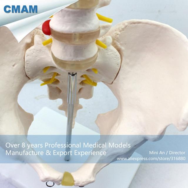 Online Shop 12342 Cmam Pelvis05 Human Pelvis Skeleton Anatomy Model