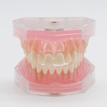 Стоматология Лаборатория Модель исследования зубов Overdenture низший 4 имплантата демонстрационная модель