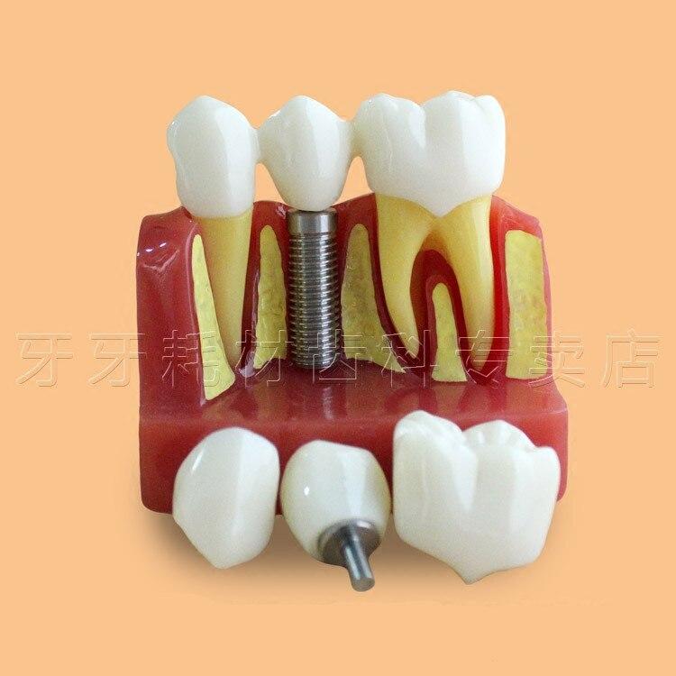 Bonne qualité quatre fois le modèle d'implant dentaire Transparent de grossissement, modèle de dent, modèle de pratique d'implant dentaire